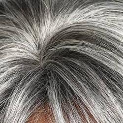 Gambar-uban-rambut